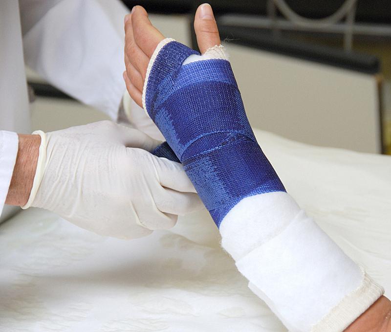 断胳膊,石膏,绷带,身体受伤,健康保健,四肢,水平画幅,部分