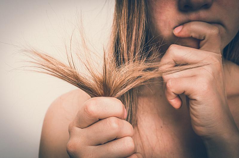 干的,头发,脆弱,问题,损失,损坏的,概念,更年期,青年人,白色